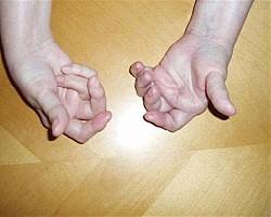 артрит артроза отличается