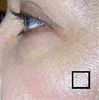 Правилните грижи за кожата с големи пори